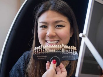 Hong Kong woman showing before after on teeth shades guide